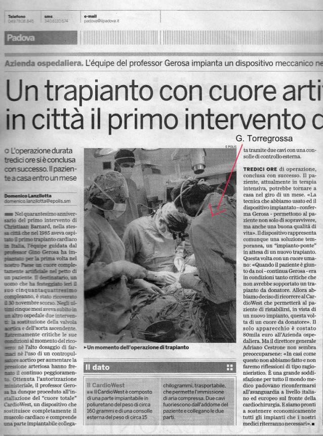 Padova, primo trapianto totale di cuore artificiale